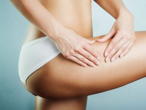 Get rid of cellulite - What method works for you