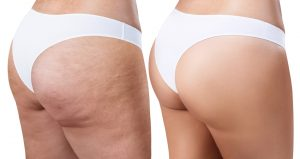 Get rid of cellulite, once and for all!